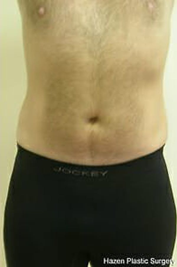 Male Liposuction Gallery - Patient 9605762 - Image 2