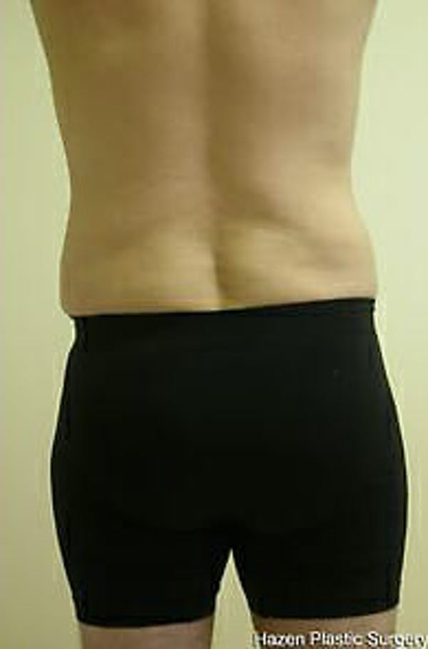 Male Liposuction Gallery - Patient 9605762 - Image 4