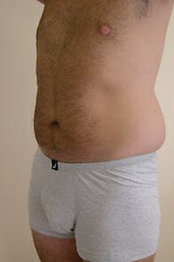 Male Liposuction Gallery - Patient 9605762 - Image 5