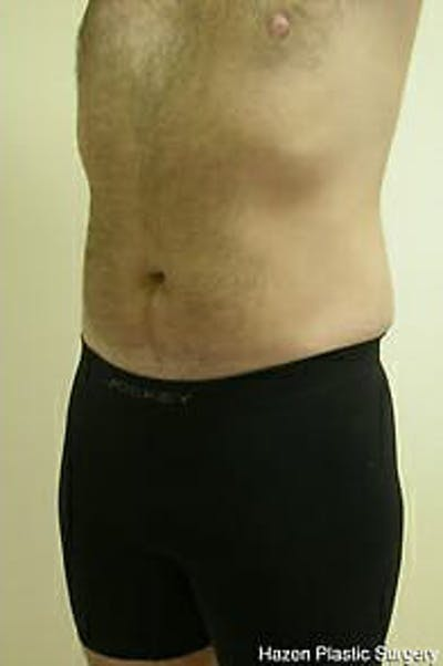Male Liposuction Gallery - Patient 9605762 - Image 6