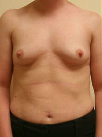 Breast Augmentation Gallery - Patient 9605763 - Image 1