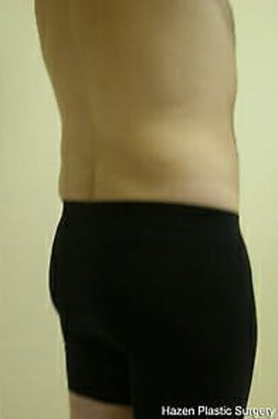 Male Liposuction Gallery - Patient 9605762 - Image 8