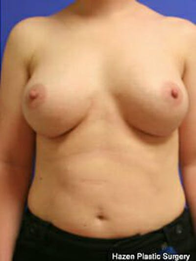 Breast Augmentation Gallery - Patient 9605763 - Image 2
