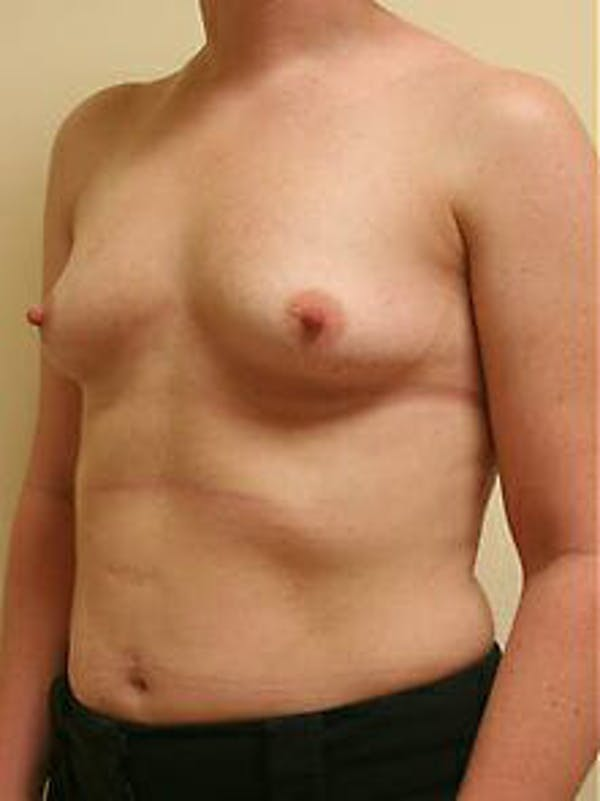Breast Augmentation Gallery - Patient 9605763 - Image 3