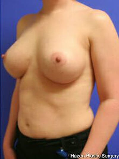 Breast Augmentation Gallery - Patient 9605763 - Image 4