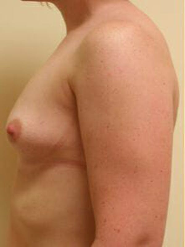 Breast Augmentation Gallery - Patient 9605763 - Image 5