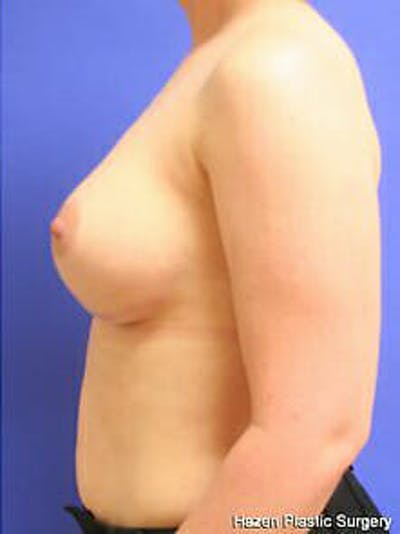 Breast Augmentation Gallery - Patient 9605763 - Image 6