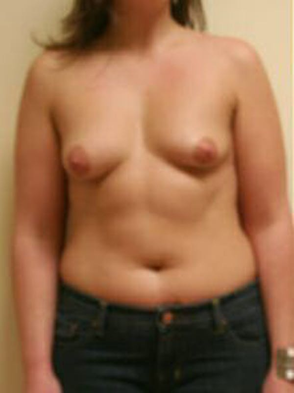 Breast Augmentation Gallery - Patient 9605767 - Image 1
