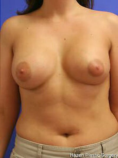 Breast Augmentation Gallery - Patient 9605767 - Image 2