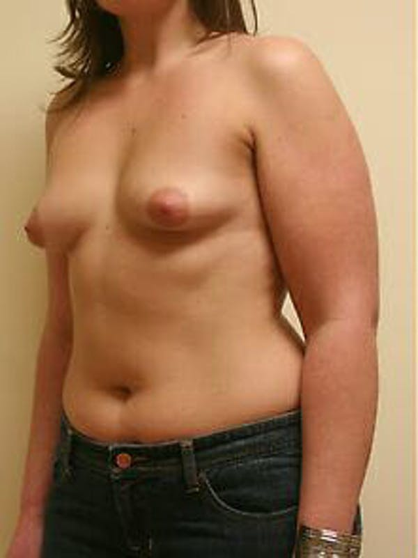 Breast Augmentation Gallery - Patient 9605767 - Image 3