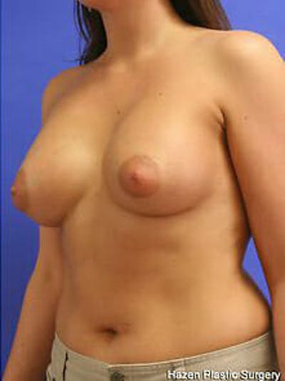 Breast Augmentation Gallery - Patient 9605767 - Image 4