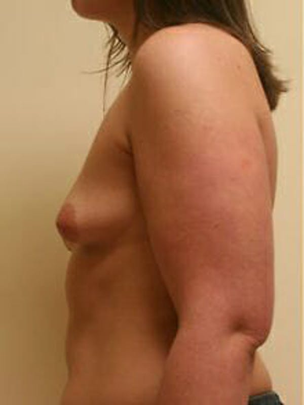 Breast Augmentation Gallery - Patient 9605767 - Image 5