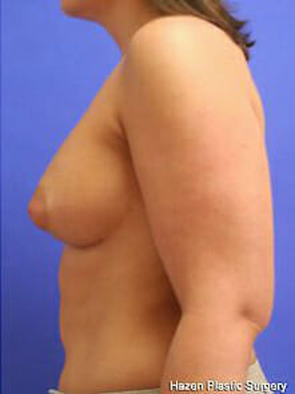 Breast Augmentation Gallery - Patient 9605767 - Image 6