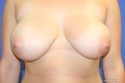 Breast Reduction Gallery - Patient 9605768 - Image 1