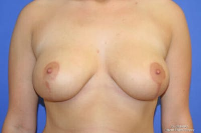 Breast Reduction Gallery - Patient 9605768 - Image 2