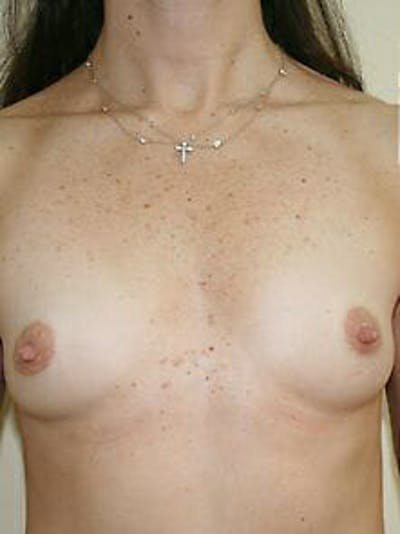 Breast Augmentation Gallery - Patient 9605770 - Image 1