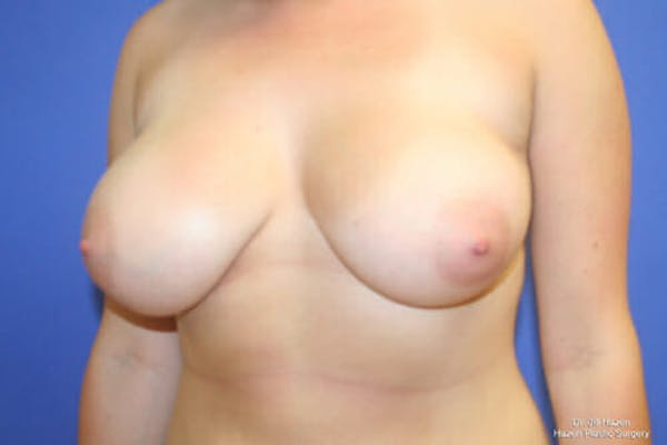Breast Reduction Gallery - Patient 9605768 - Image 3