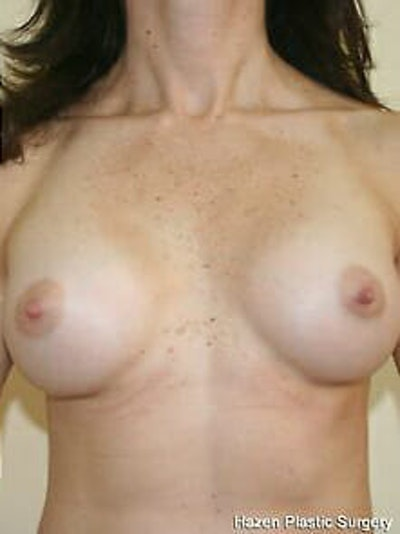 Breast Augmentation Gallery - Patient 9605770 - Image 2