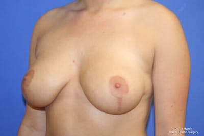 Breast Reduction Gallery - Patient 9605768 - Image 4