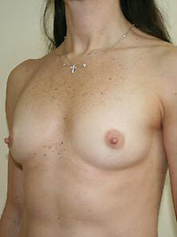 Breast Augmentation Gallery - Patient 9605770 - Image 3