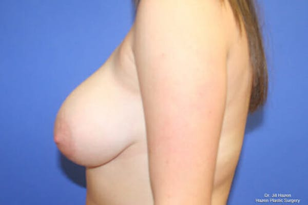 Breast Reduction Gallery - Patient 9605768 - Image 5