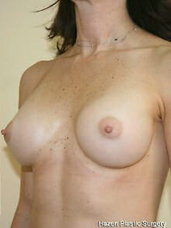 Breast Augmentation Gallery - Patient 9605770 - Image 4