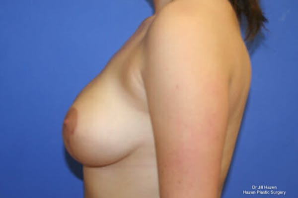 Breast Reduction Gallery - Patient 9605768 - Image 6