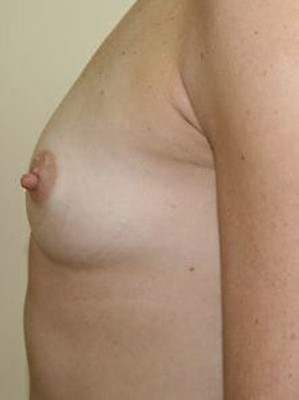 Breast Augmentation Gallery - Patient 9605770 - Image 5