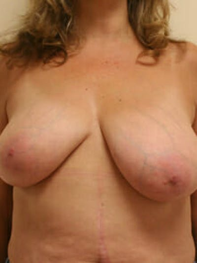 Breast Reduction Gallery - Patient 9605777 - Image 1