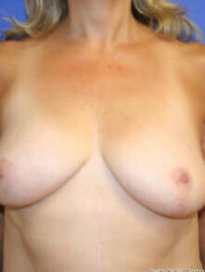 Breast Reduction Gallery - Patient 9605777 - Image 2