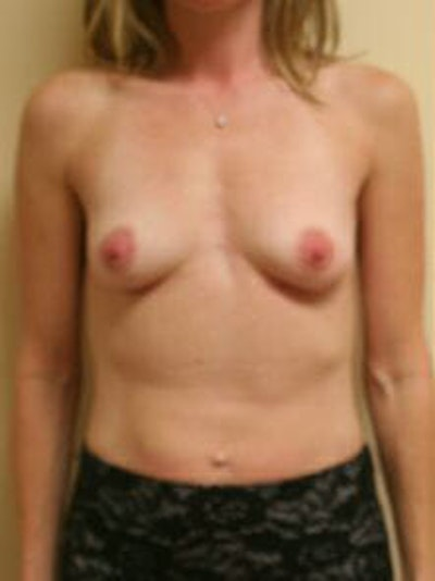 Breast Augmentation Gallery - Patient 9605778 - Image 1
