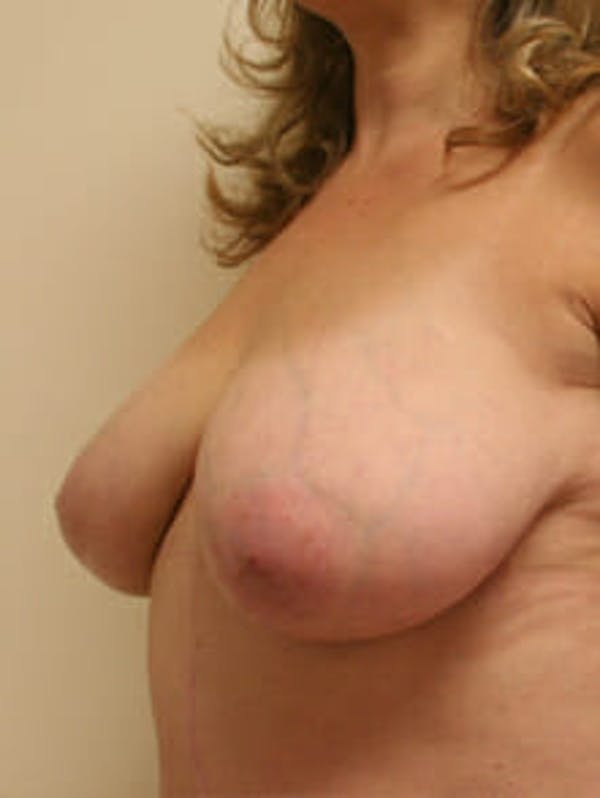 Breast Reduction Gallery - Patient 9605777 - Image 3