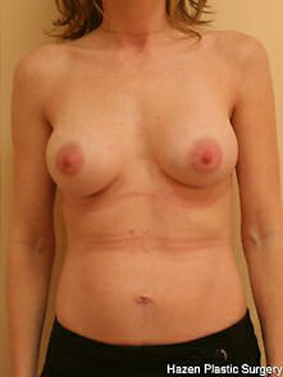 Breast Augmentation Gallery - Patient 9605778 - Image 2