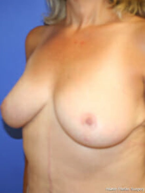Breast Reduction Gallery - Patient 9605777 - Image 4