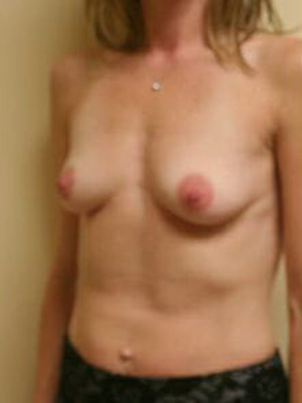 Breast Augmentation Gallery - Patient 9605778 - Image 3