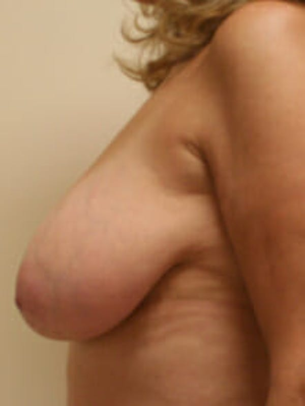 Breast Reduction Gallery - Patient 9605777 - Image 5
