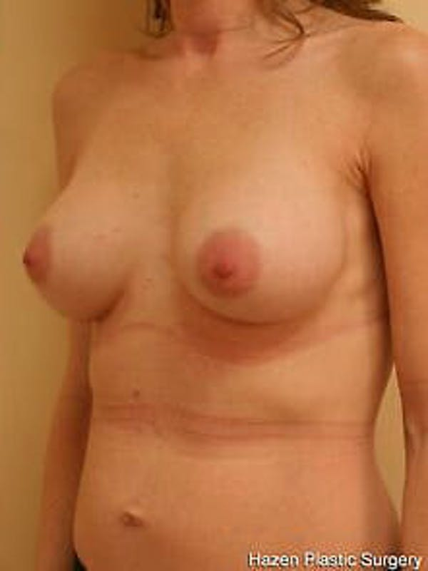 Breast Augmentation Gallery - Patient 9605778 - Image 4