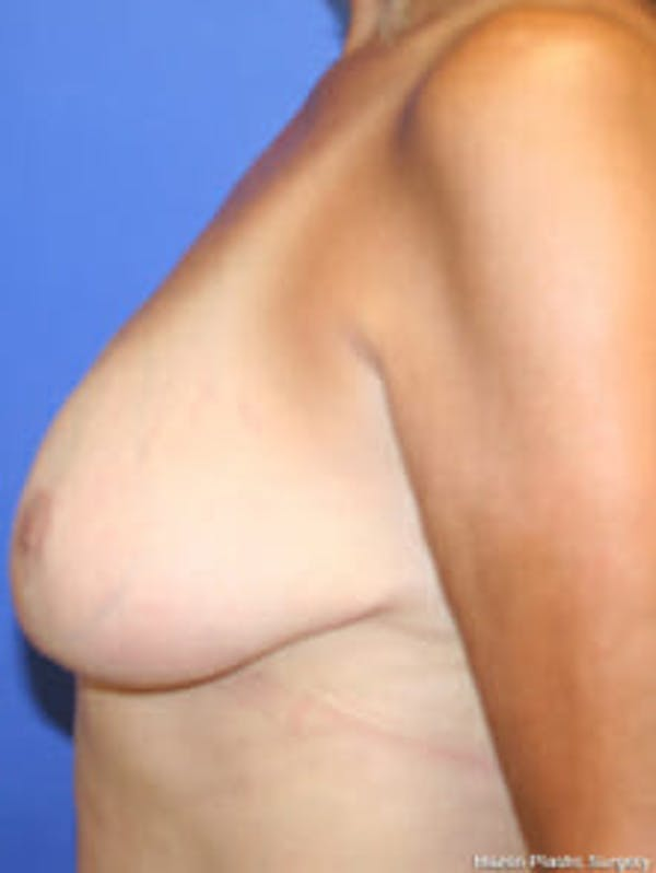 Breast Reduction Gallery - Patient 9605777 - Image 6