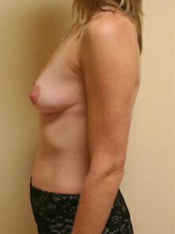 Breast Augmentation Gallery - Patient 9605778 - Image 5