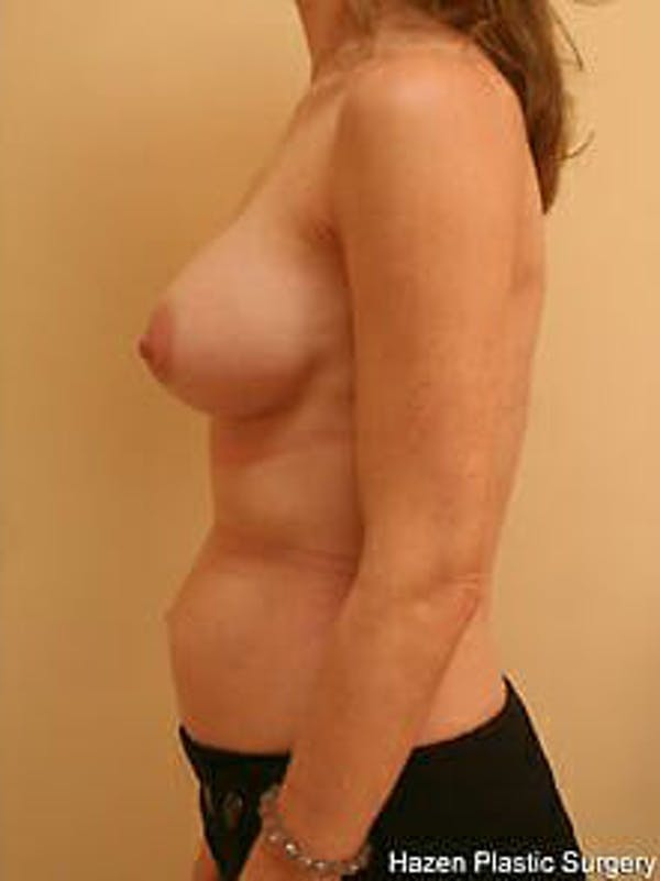 Breast Augmentation Gallery - Patient 9605778 - Image 6