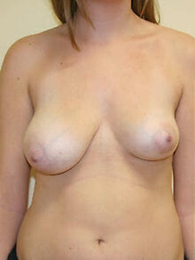 Breast Reduction Gallery - Patient 9605781 - Image 1