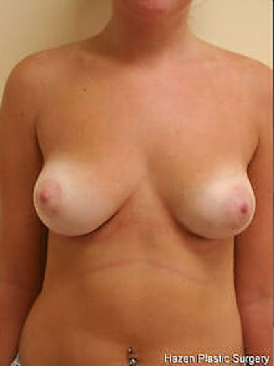 Breast Reduction Gallery - Patient 9605781 - Image 2