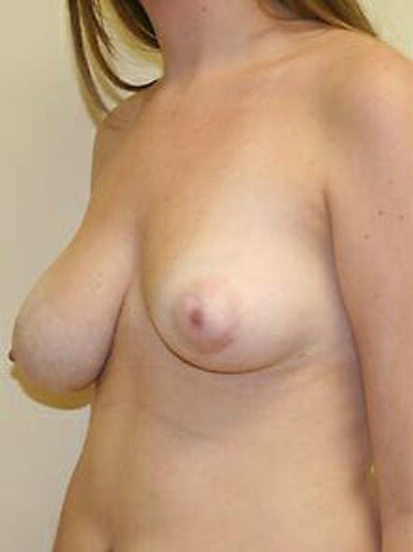 Breast Reduction Gallery - Patient 9605781 - Image 3