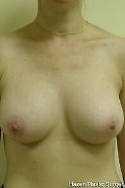 Breast Augmentation Gallery - Patient 9605783 - Image 2