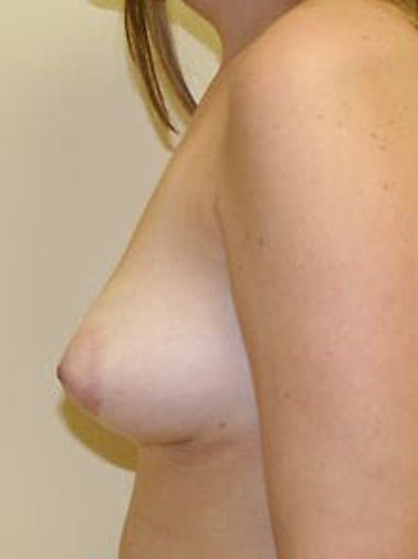 Breast Reduction Gallery - Patient 9605781 - Image 5