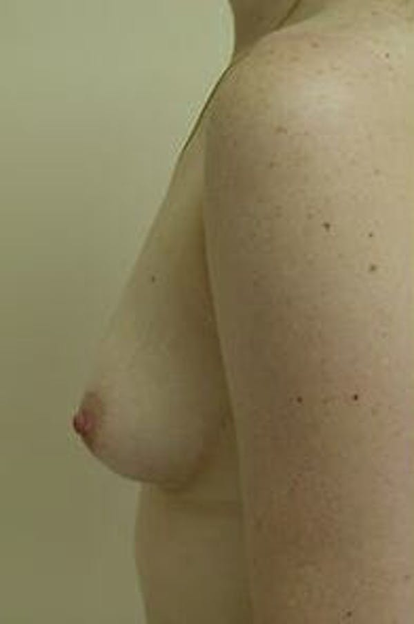 Breast Augmentation Gallery - Patient 9605783 - Image 5