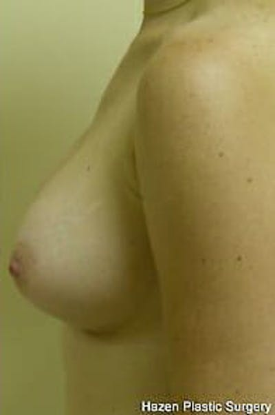 Breast Augmentation Gallery - Patient 9605783 - Image 6