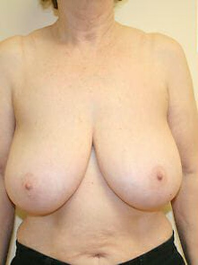 Breast Reduction Gallery - Patient 9605787 - Image 1