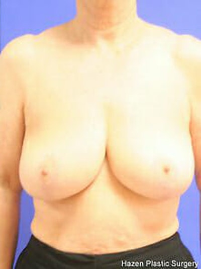 Breast Reduction Gallery - Patient 9605787 - Image 2