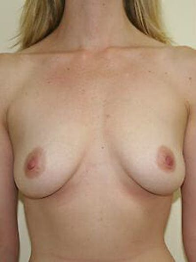 Breast Augmentation Gallery - Patient 9605788 - Image 1